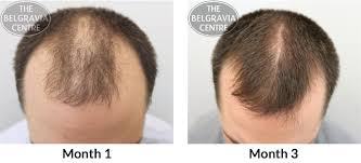 rogaine for women success stories do minoxidil only male hair loss treatment plans work