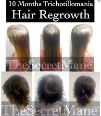 hair styles for trichotellamania trichotillomania hair regrowth salon success story using a very