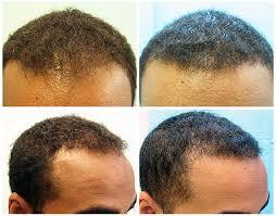 hairline restoration for black men hairline restoration for african americans body hair grafts