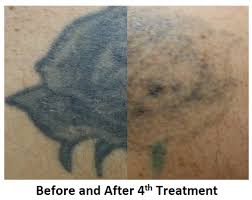 hesperia tattoo removal victorville tattoo removal apple