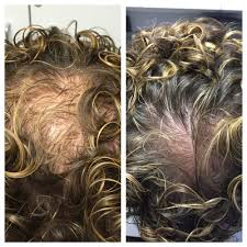 Injection In Scalp For Hair Growth Hair Loss Restoration U2014 Prolotherapy Scottsdale Az U2022 Source Of