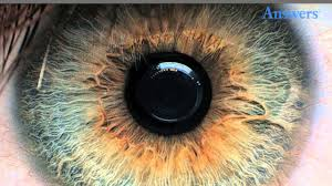 What Causes Blindness In Humans Rare Eye Conditions You Have To See To Believe Youtube