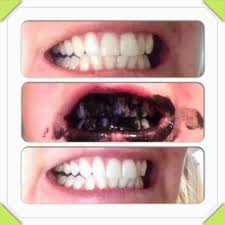 Teeth Whitening With Hydrogen Peroxide Whitening Teeth Whitening Natural Awful Whiten Teeth Naturally
