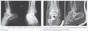 Subtalar Joint Fracture Irreducible Subtalar Dislocation Caused By Sustentaculum Tali