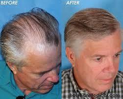 hair transplant america hair restoration for men women bauman medical group