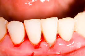 Teeth Whitening With Hydrogen Peroxide Can Hydrogen Peroxide Treat Gingivitis