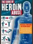 the signs of heroin abuse