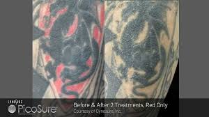 tattoo removal inc before after photos wisconsin laser center in appleton wi