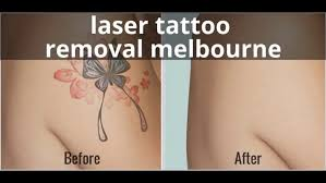 100 tattoo removal cost melbourne laser tattoo removal