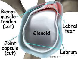 Pain In Shoulder When Bench Pressing Anterior Shoulder Pain Bench Press