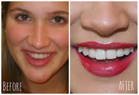 how i whiten my teeth naturally at home super affordable emily