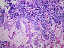 lepidic pattern meaning file large cell neuroendocrine carcinoma combined with