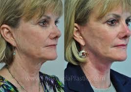 hairstyles that cover face lift scars facelift houston rhytidectomy surgeon mini smas deep plane