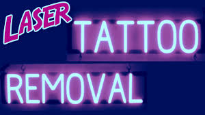 laser tattoo removal greenville sc picosure tattoo price youtube