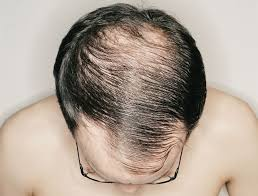 real people with fine balding hair 10 quick and easy ways to thicken your hair men s health