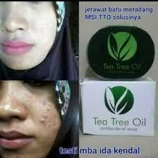 Sabun Tto msi sabun tea tree sabun wajah untuk jerawat meradang