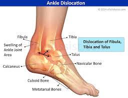 Talus Ligaments Dislocated Ankle Treatment Recovery Prognosis Causes Symptoms