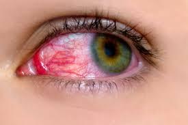 pink eye symptoms you shouldn t ignore reader s digest