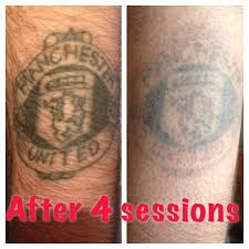 35 best laser tattoo removal from the missing ink images on