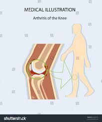 Anatomy Of The Knee Medical Illustration Arthritis Knee Human Anatomy Stock Vector