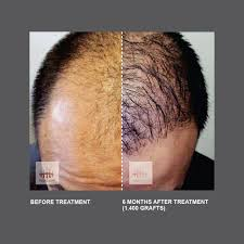 Stem Cells Hair Loss Hasci Unistem Clinic