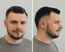 comb over with receding hairline 50 classy haircuts and hairstyles for balding men fade haircut
