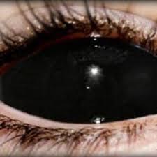 prescription colored contact lenses uk periodic tables