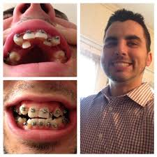 Boy With Braces Meme - my single mother couldn t afford braces for me growing up when i