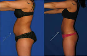 lipo light laser treatment reviews lipo light sessions reviews americanwarmoms org