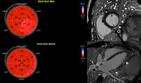 late detection of left ventricular dysfunction using two