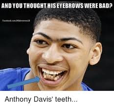 Bad Teeth Meme - and you thought his eyebrows were bad facebookcomnbamemes18 anthony