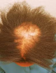 the thin hair african american 9 reasons to avoid perms and relaxers black liberation love of n