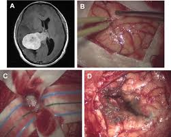 surgical management of meningioma of the trigone area of the