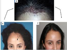 how wide is a normal hairline part principles techniques used to create a natural hairline in