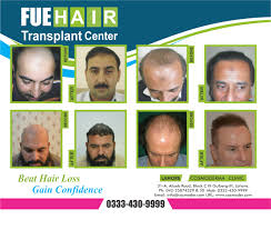 hairstyle stem cell hair restoration hair loss treatment