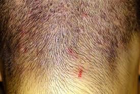 prurito testa e corpo brufoli sul cuoio capelluto cause e rimedi