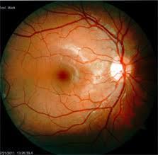 Diabetic Blindness Diabetic Retinopathy New Orleans Lasik Eye Surgery U0026 Laser