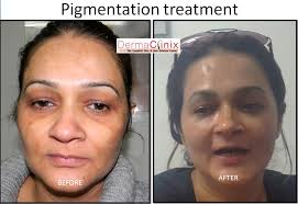 tattoo removal before after results skin pigmentation results delhi