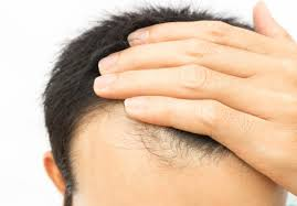 Vitamin Deficiency And Hair Loss Does Biotin For Hair Growth Work Dosage And Side Effects