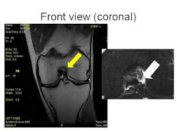 Sho Acl how to read knee mri of acl tear torn acl santa fe knee