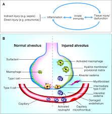 human models of acute lung injury disease models u0026 mechanisms