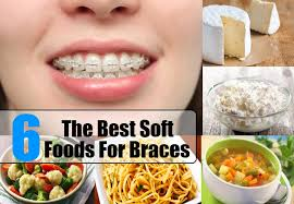 soft food diet for braces 28 images soft foods for braces with
