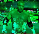 WrestleMania Burns: Triple H Suffered 2nd Degree Burns at