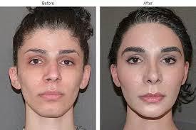 feminizeing hair transgender and beautiful facial feminization surgery lip fillers