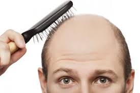 female receding receding hairline diet and insulin the surprising hair loss link
