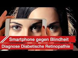 Diabetes Causing Blindness Best 25 Diabetic Retinopathy Ideas On Pinterest What Causes Eye