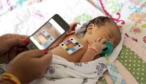 bilicam using mobile phones to monitor newborn jaundice u2013 ubicomp