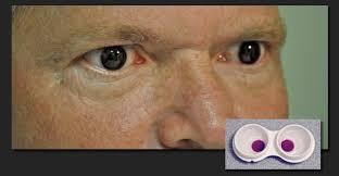 Achromatopsia Info Contact Lenses For Achromatopsia