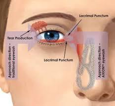 Faucet Mounted Eyewash Station Haws Axion Eyepod Eyewash System