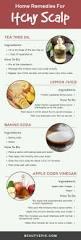 best 25 dry scalp remedy ideas on pinterest dry scalp what